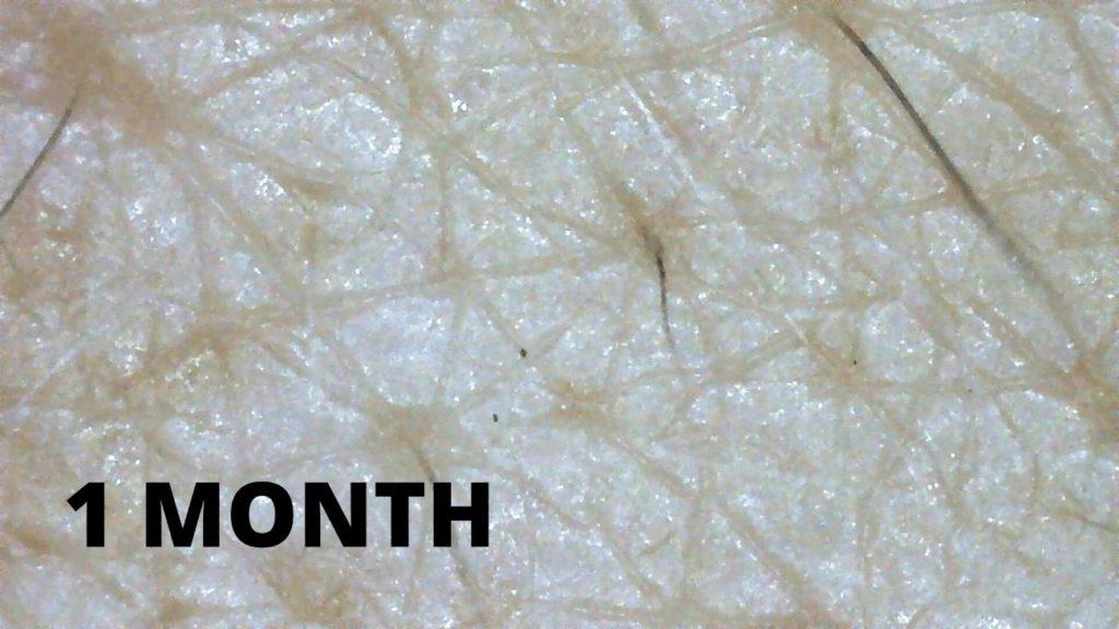 肌断食 マイクロスコープ 1ヶ月