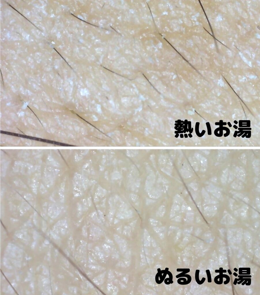肌断食 マイクロスコープ
